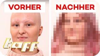 Ann-Kathrin (18) hat keine Haare: Kann man Ihr helfen?  | SOS - Einsatz der Beauty-Retter | taff