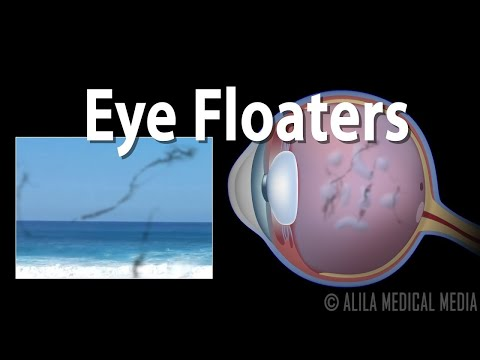 Eye Floaters And Flashes, Animation.