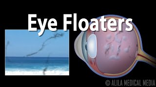 EYE FLOATERS, what are they? EYE NEWS TV.