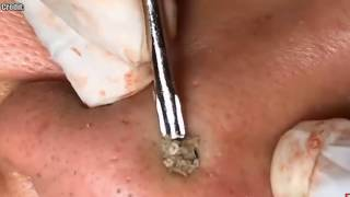 Best Whitehead, Whiteheads, White Heads!  Closed Comedones