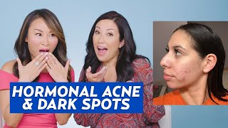 Hormonal Acne and Hyperpigmentation Skincare Routine for Giselle!