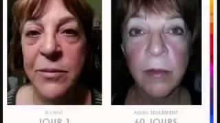 Gamme Luminesce avant et après FLUVORE