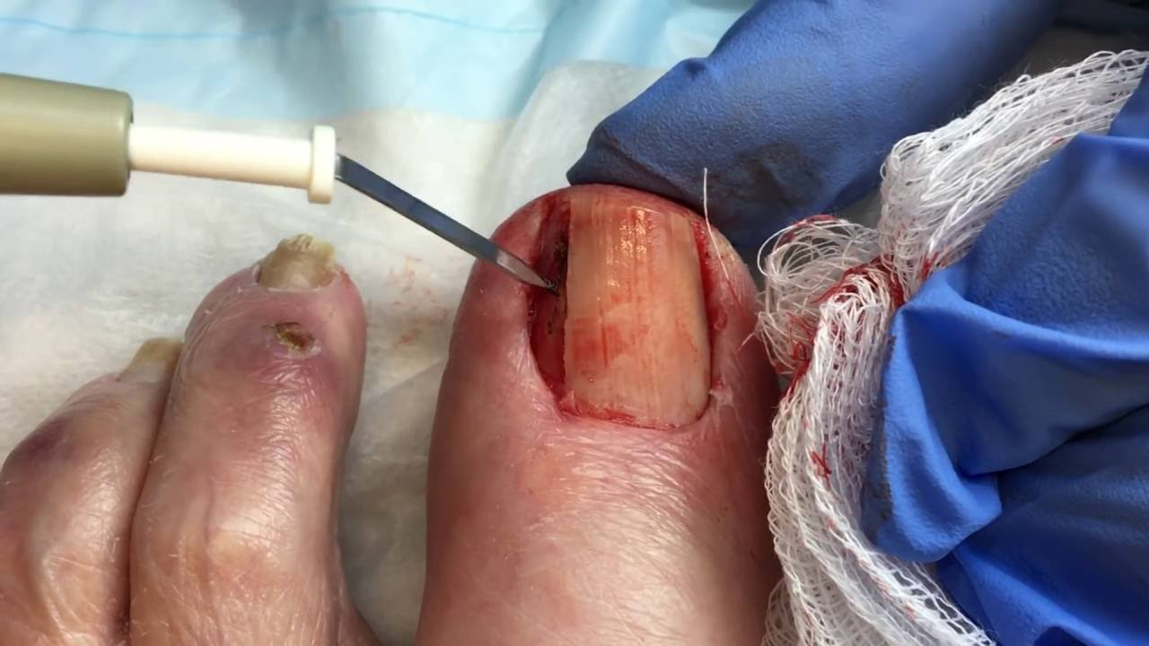 A Case With An Ingrown Toenail A Preoperative B Lateral Manual Guide