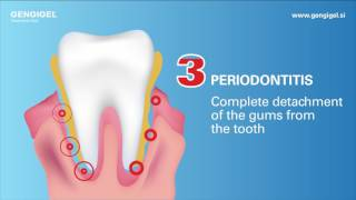 Why do gums get inflamed?