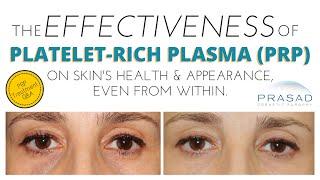 Effectiveness of Platelet-Rich Plasma (PRP) for Skin and Facial Rejuvenation