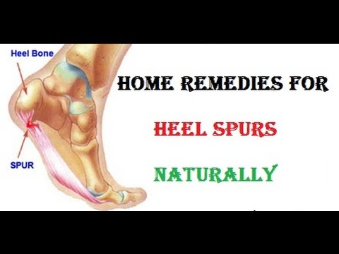natural remedies for bone spurs