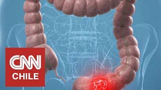 Así funciona el colon-check, el examen que permite adelantarse al cáncer de colon