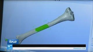 شاهد..صناعة أجهزة الجسد التعويضية باستخدام طابعة 3d
