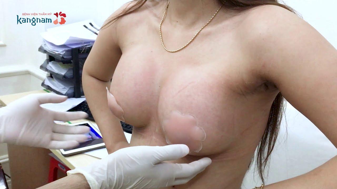 Vếu to gái xinh sau khi nâng ngực, Vòng 1 Nóng Bỏng