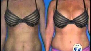 Little Rock Mommy Makeover with Cosmetic Surgeon Dr. Rhys Branman Thumbnail