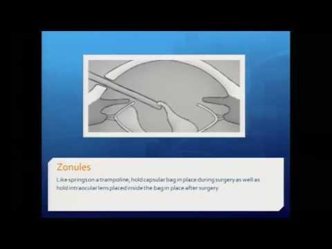 Diagnosing and Treating Cataracts
