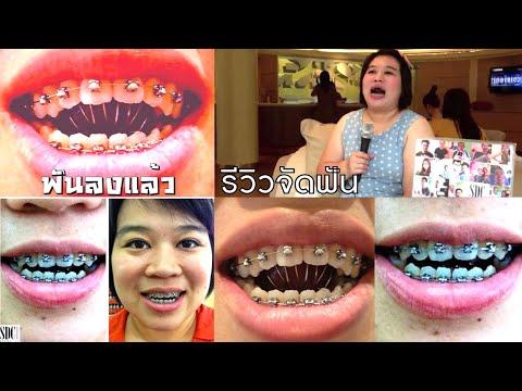 จัดฟัน รีวิวจัดฟัน ดัดฟันขั้นเทพ Youtube