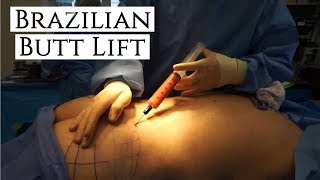 Dr. Barrett's Brazilian Butt Lift (BBL) Surgery | Real Footage!