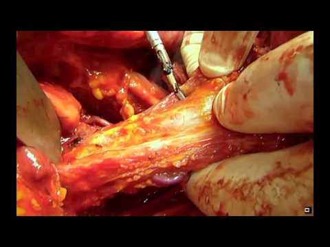 LYNPARZA FOR ADVANCED OVARIAN CANCER from YouTube · Duration:  1 minutes 31 seconds