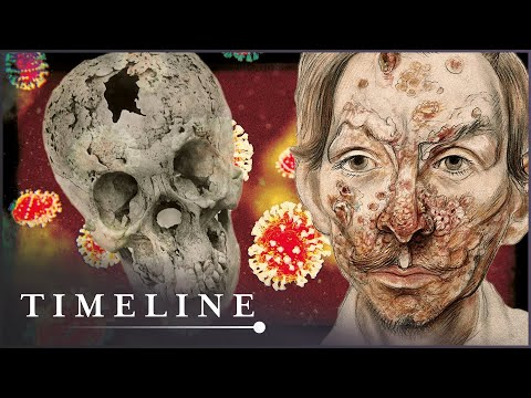 The Syphilis Enigma (Medieval Disease Documentary) | Timelin