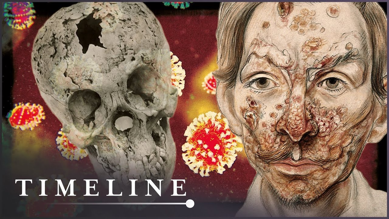 Did Columbus Bring Syphillis Back to Europe? | The Syphillis Enigma | Timeline