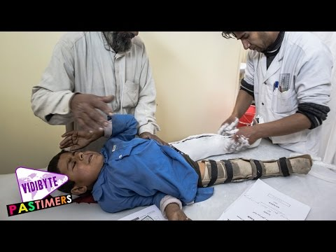 What Is Polio, Causes and Symptoms || Health Tips