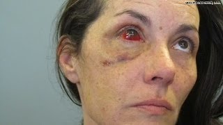 Woman's face shattered after DUI arrest