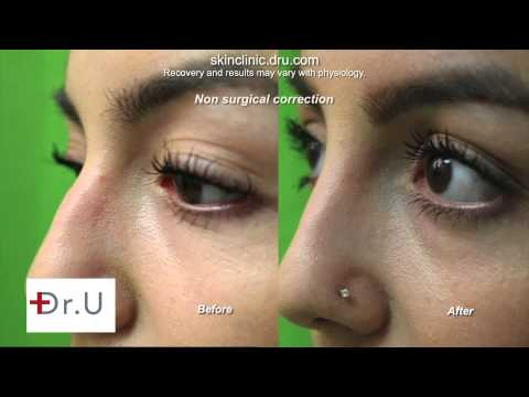 Incredible Nose Job Results Without Surgery - Before and After Radiesse
