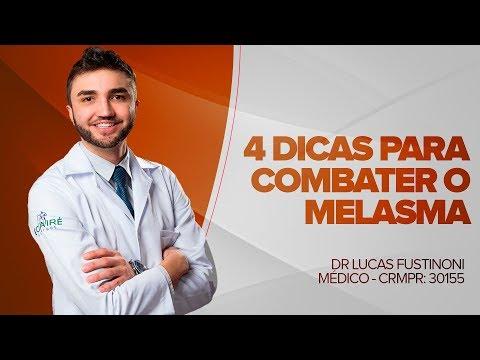 melasma causas