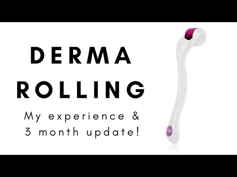 Derma rolling: My experience & 3 month update!