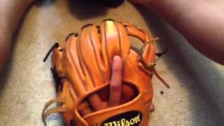 What's In My Baseball Bag 2015