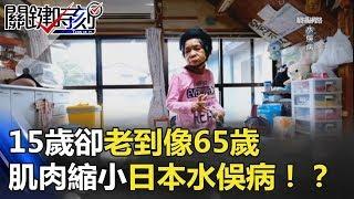 15歲卻老到像65歲 肌肉一直縮小的日本「水俁病」!? 關鍵時刻 20180507-6 劉燦榮 黃世聰