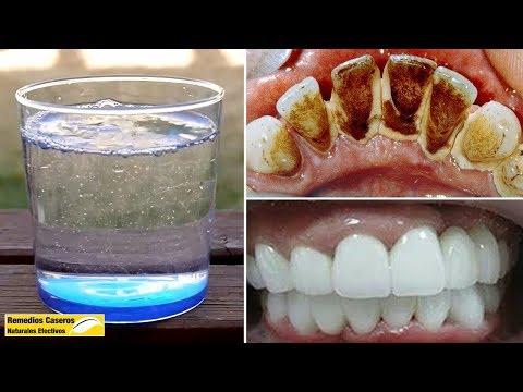 Fórmula Secreta Del Dentista Chino: Eliminar La Placa Dental En 2 Minutos Con Este Enjuague Bucal from YouTube · Duration:  5 minutes 4 seconds