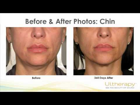 Ultherapy - Tighten Face & Neck Skin Without Surgery