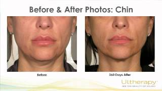 Ultherapy: The First-ever, FDA-approved, Noninvasive, Skin-lifting Procedure