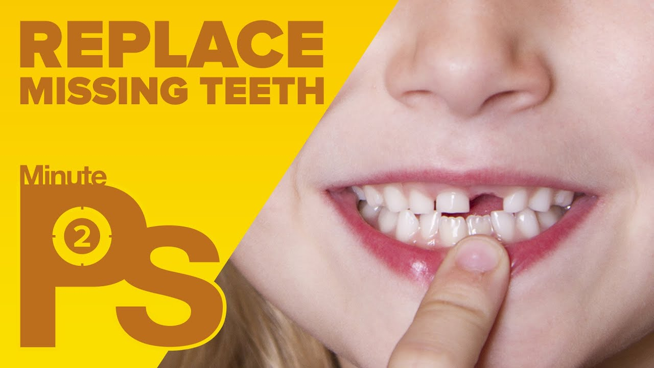 How To Fix Missing Teeth In Photoshop Minutephotoshop Youtube