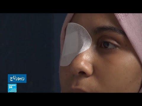 مسيرات العودة في غزة.. تكلفة بشرية باهظة وإصابات غيرت حياة المتظاهرين للأبد!!  - 11:00-2020 / 1 / 21