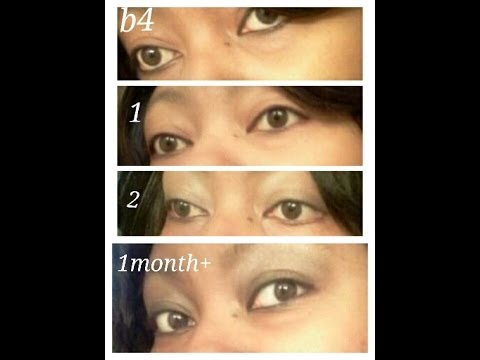 Honey eye drops 1month + update, you leave the mixture on for 10 minutes, B4 & after pics - YouTube