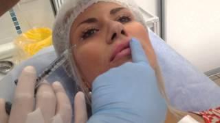 обучение контурная пластика увеличение объема область губ