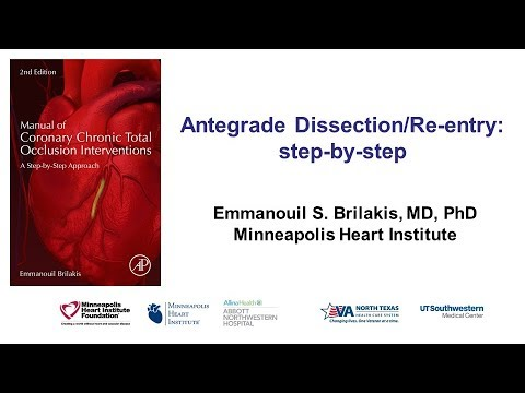 Antegrade Dissection And Re-entry: Step-by-step