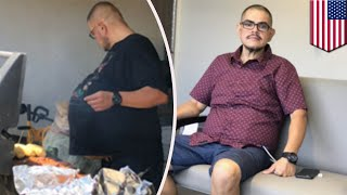 35キロの悪性腫瘍をビール腹だと思い込んでいた男性 - トモニュース