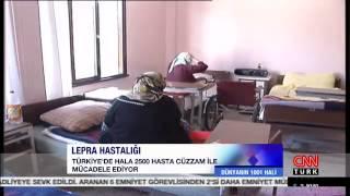 Dünyanın 1001 Hali-Cüzzam ve Türkan Saylan