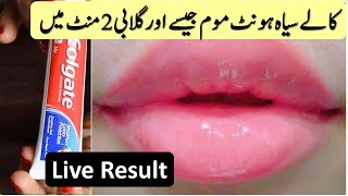 Pink Lips Naturally in just 2 Minutes - Easy & 101% Works