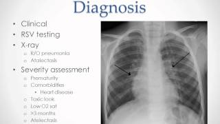 Bronchiolitis - USMLE Step 2 Review
