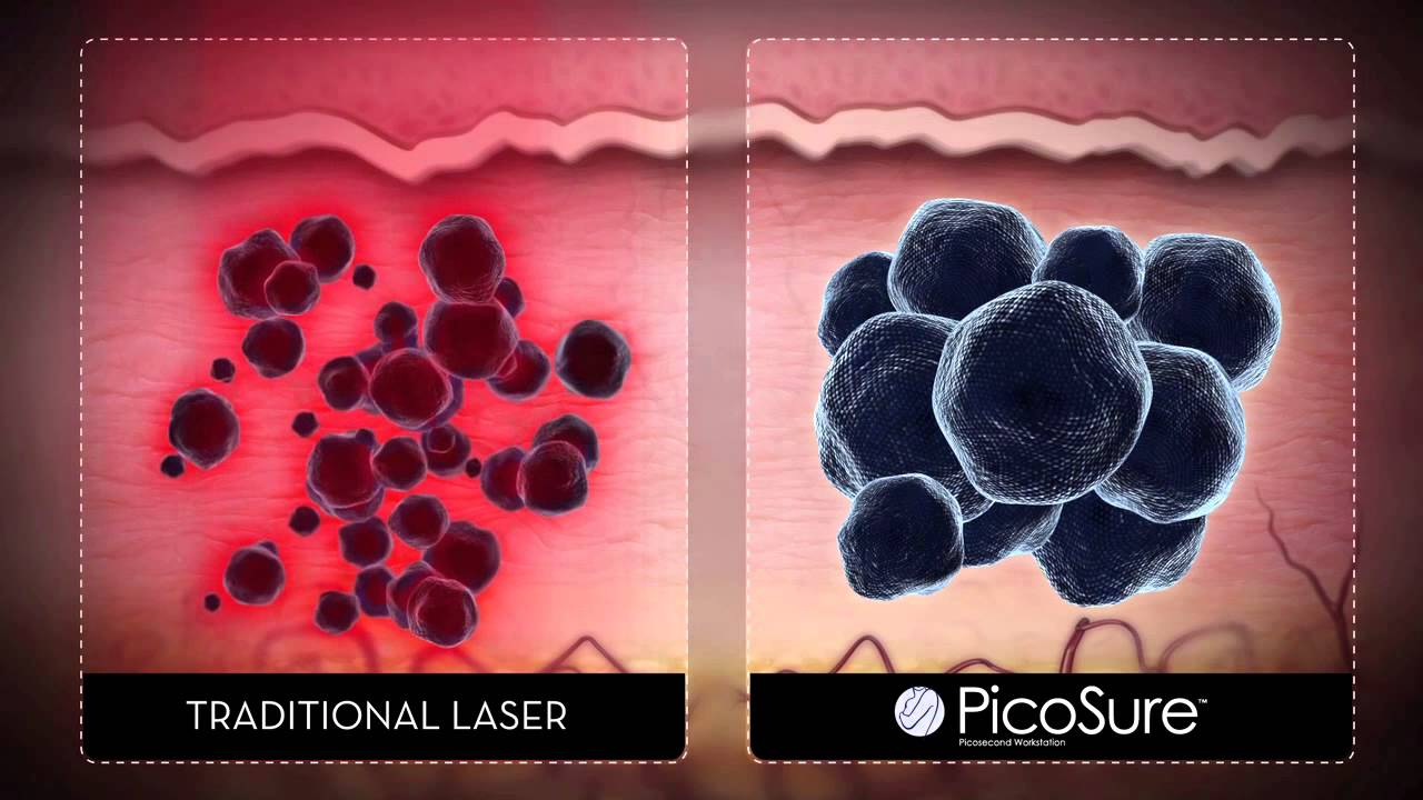 Picosure laser tattoo removal nj youtube for Tattoo removal nj