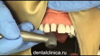 Клиника эстетической стоматологии, металлокерамика, циркониевая коронка центральный резец(Клиника эстетической стоматологии European Clinic of Aesthetic Dentistry in Budapest Eiffel Medical Center Dentist