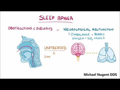 Sleep Apnea Pasadena Texas | No CPAP | Sleep Doctor