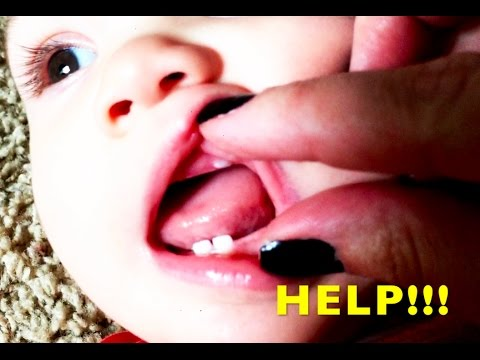 Help My Baby S Tooth Is Growing In Wrong Spot Infant Tooth Coming