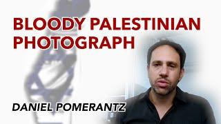 Bloody Palestinian Photograph