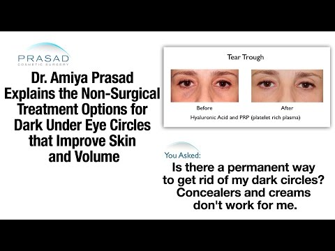 Under Eye Dark Circle Treatment Using Platelet-Rich Plasma and Hyaluronic Acid Fillers