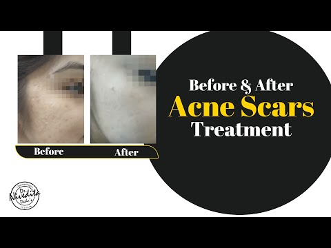 Acne Scars Treatment Before and After - Patient's Experiance