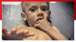 Yemen on the Brink of Famine, From YouTubeVideos