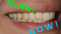 How to fix a broken front tooth the SAME DAY!
