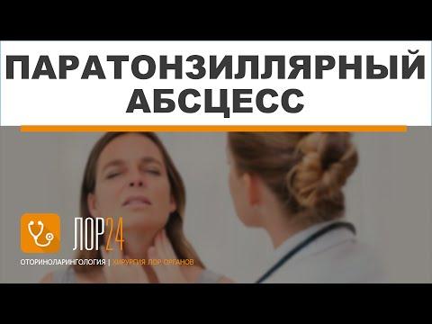 Паратонзиллярный абсцесс: симптомы, причины, диагностика и