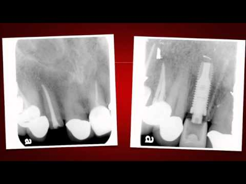 Implant Case #7 - Dr. Tarun Agarwal, Part 10: Post OP x-ray